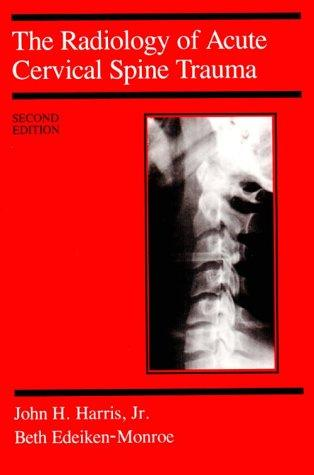 Download The radiology of acute cervical spine trauma