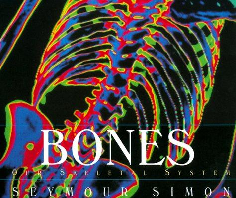 Download Bones